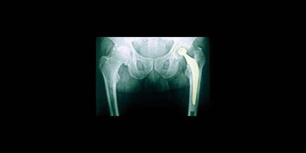 Des prothèses de hanche à souci métallique