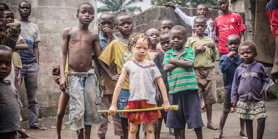Les albinos de RDC entre ombre et lumière